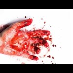 Excessive Blood Loss