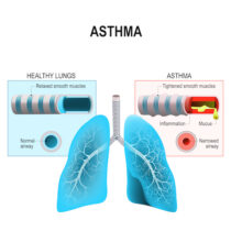 How Asthma Affects the Respiratory System